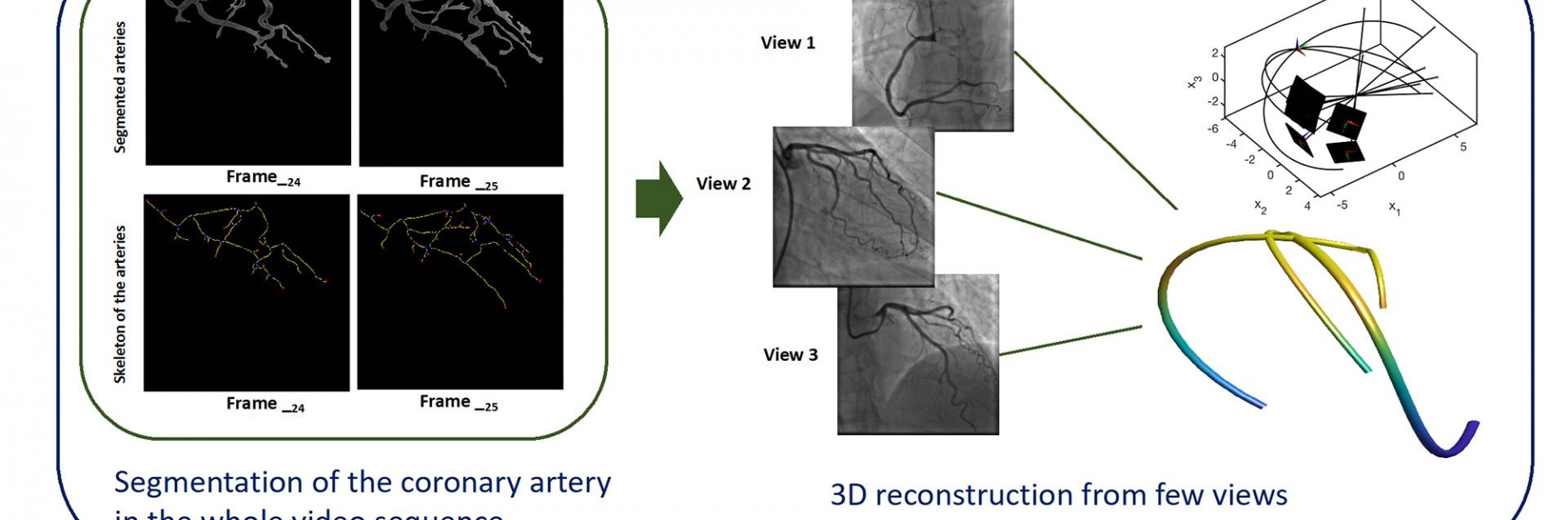 Svart-hvite bilder av hjertet under en operasjon