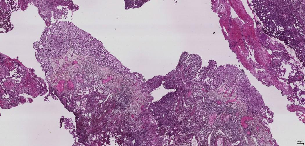 Lilla flekker på et mikroskop-bilde